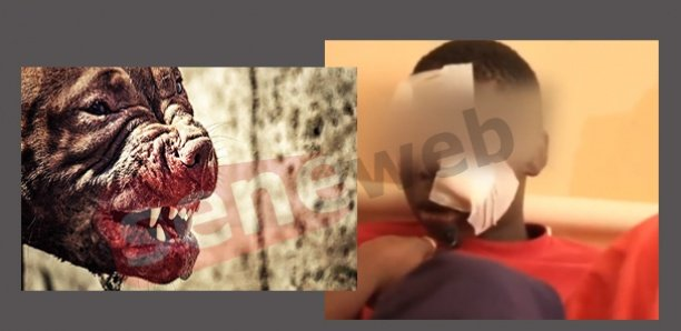 Linguère : Mordu par un chien, un talibé de 07 ans est entre la vie et la mort