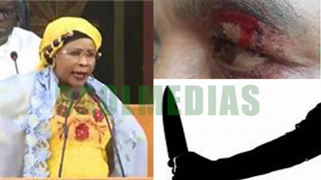 (AUDIO) Mame Diarra femmes attaquée davant sa maison…..