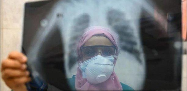 Afrique : La fuite des cerveaux dans le secteur de la santé